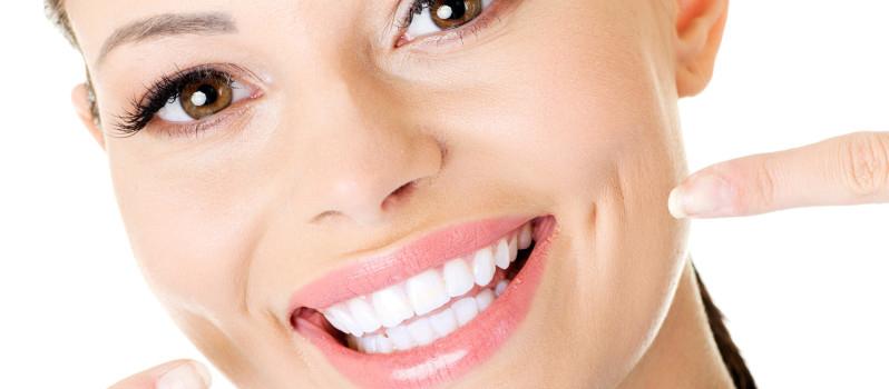 sorriso-sbiancamento